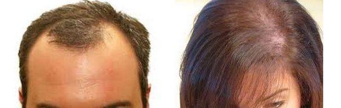 fläckvis håravfall kvinnor