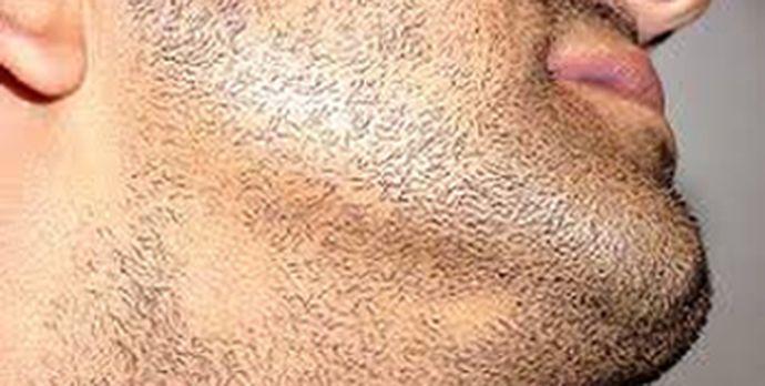fläckvis håravfall stress